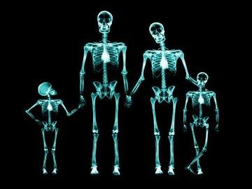 Одесские больницы получат новые рентген аппараты