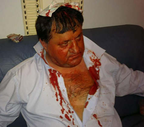 Во время Драки в ВР Николаю Петруку разбили голову. Фото УП